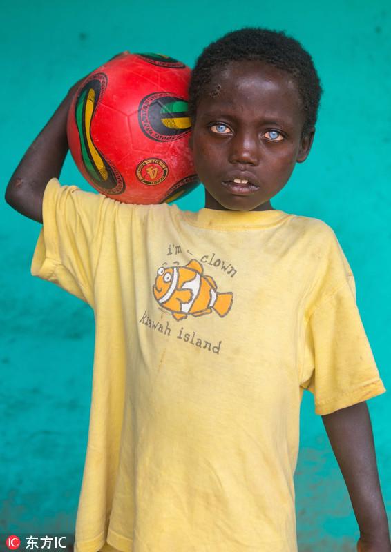 非洲男孩患罕见病症 天生蓝眼睛似混血图片