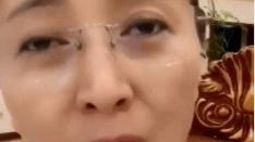 48岁闫学晶直播献歌 素颜出镜额头伤疤明显