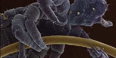 电子显微镜下的世界,看完感觉浑身都不好了! ????